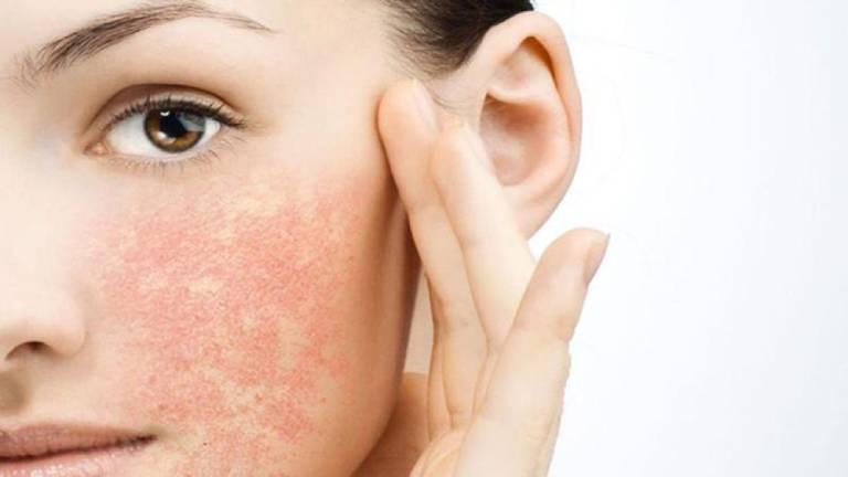 Da mặt dị ứng với mỹ phẩm