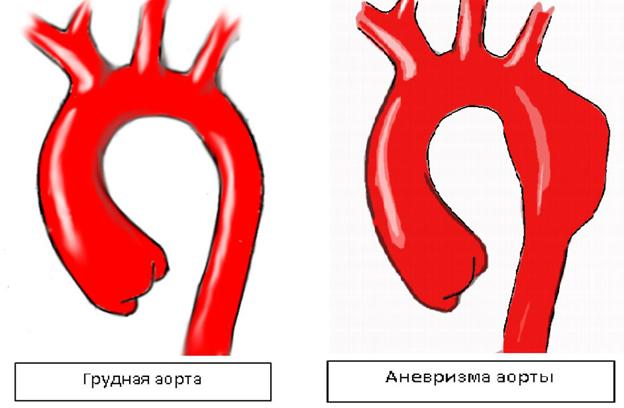 Аневризма дуги аорты симптомы