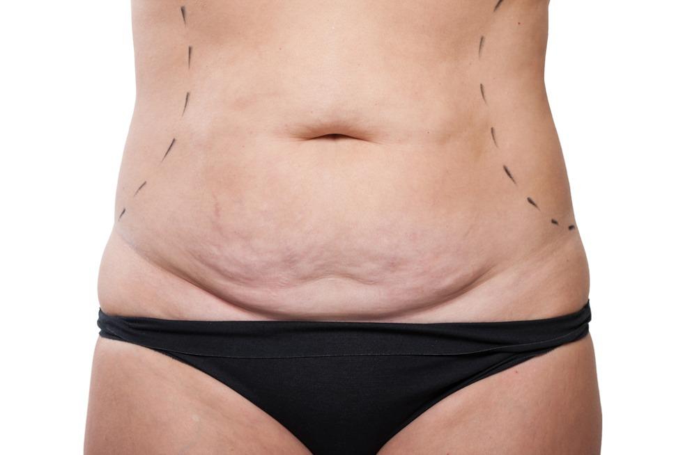 Karın germe mi, liposuction mı