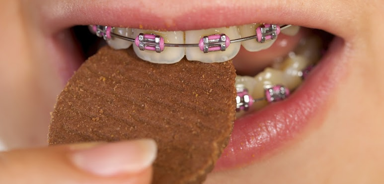 Girl with pink traditional metal braces eating a cookie