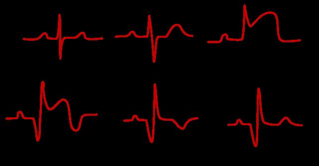 https://upload.wikimedia.org/wikipedia/commons/thumb/a/ae/Evol_Of_MI.svg/640px-Evol_Of_MI.svg.png