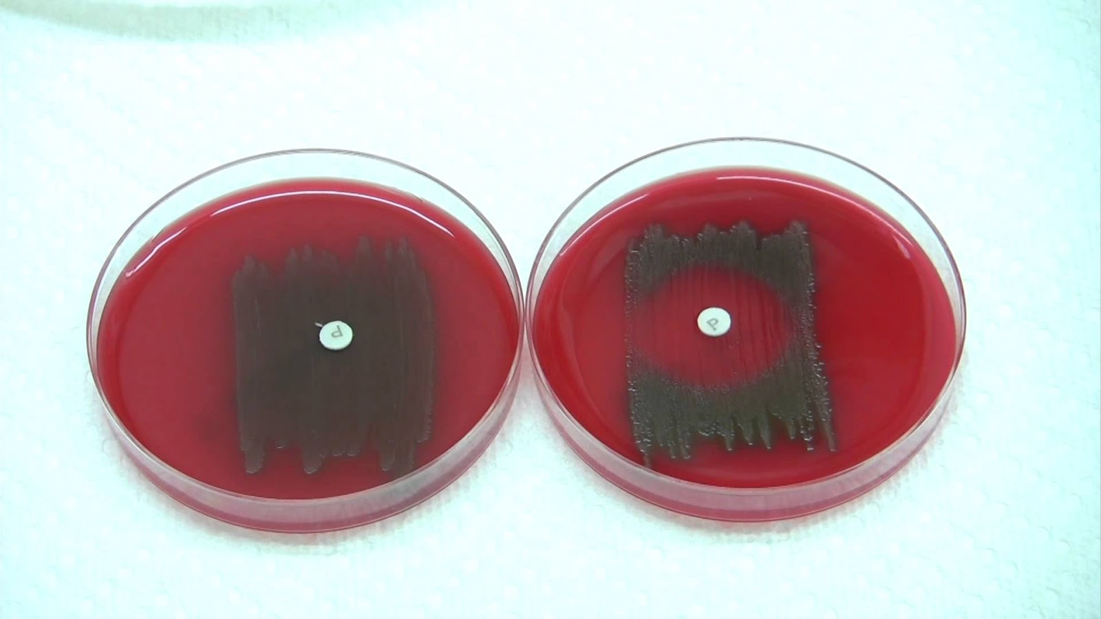 Left (Optochin Resistant) - Right (Optochin Sensitive)