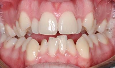 Bọc răng sứ cho răng bị khấp khểnh như thế nào?