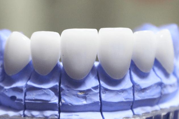 Răng sứ Ceramill