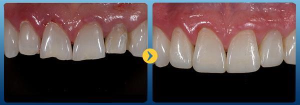 Hàn răng cửa bị mẻ được thực hiện thế nào? 1