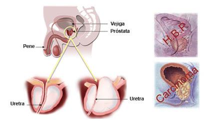 zonas de mcneal prostata