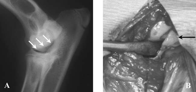 A radiographic and intra-operative image illustrating OCD of the medial humeral condyle