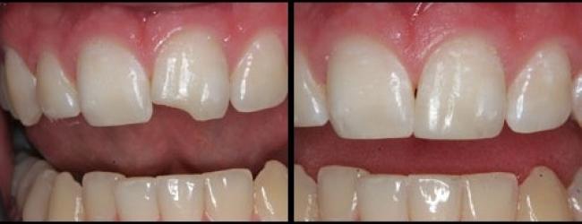 Trám răng bị mẻ mất bao nhiêu thời gian là hợp lý?