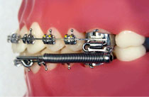 Forsus appliance on teeth