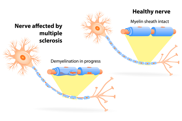 Demyelination of nerves affected by Multiple Sclerosis