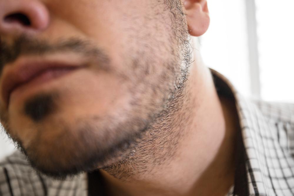 patchy beard