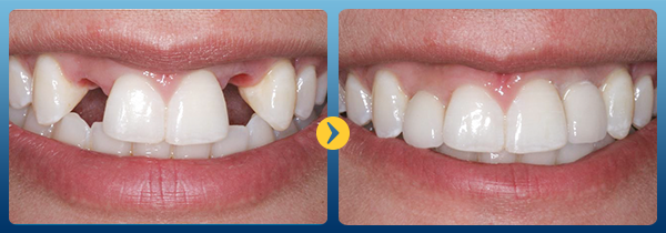hình ảnh trước và sau khi cấy ghép imlant tại nha khoa cataria 2