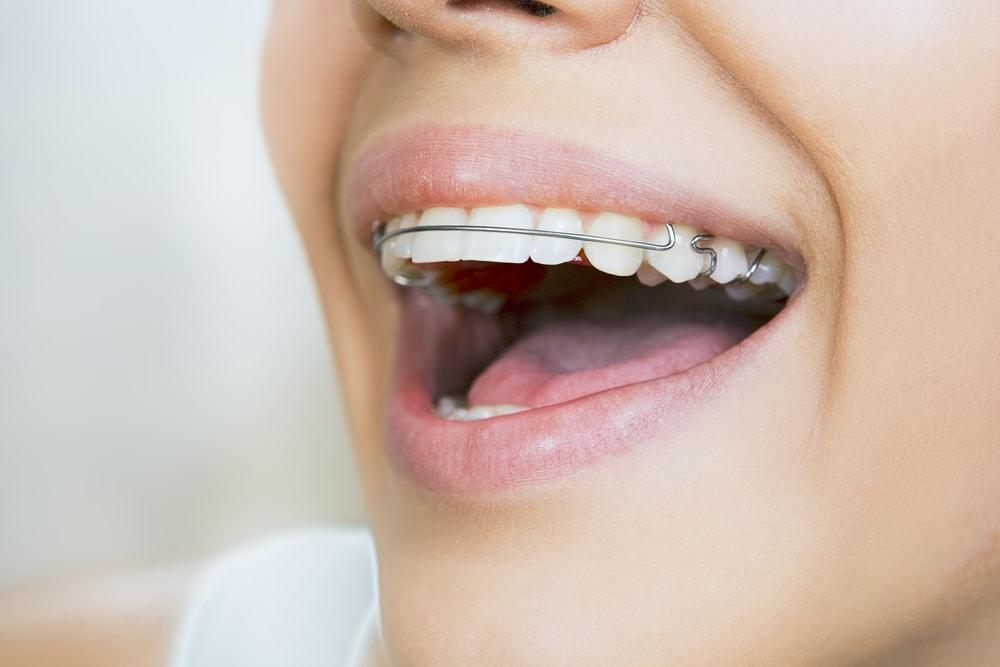 A importância do aparelho de contenção no final do tratamento ortodôntico -  Sorriden