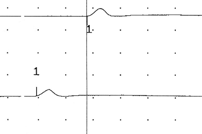 A reduced nerve conduction velocity is demonstrated after stimulation of the proximal portions of the tibial nerve and the distal portions