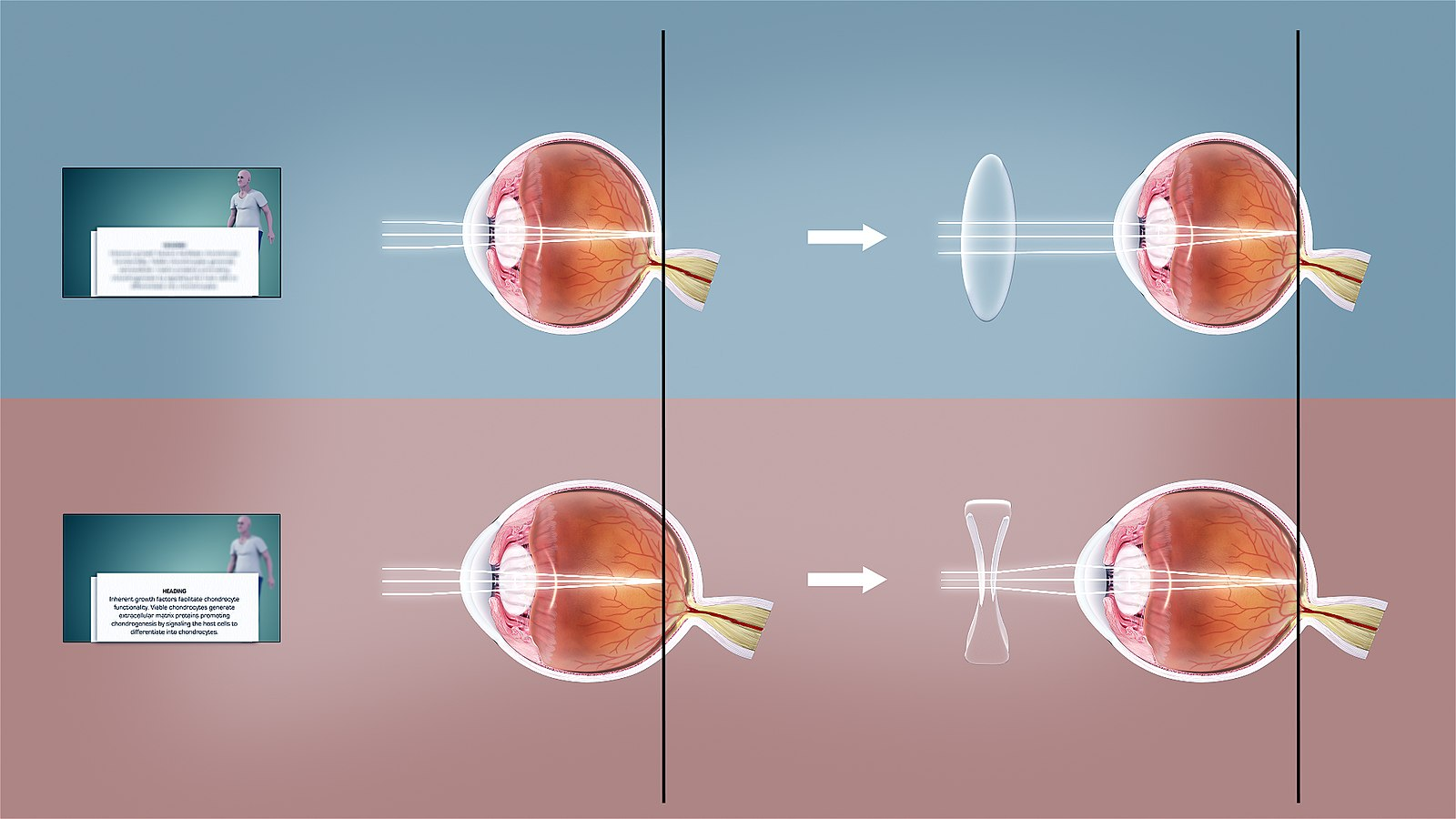 showcase of how the light enters the eye and how an incorrect entrance of the eye lead to farsightedness.