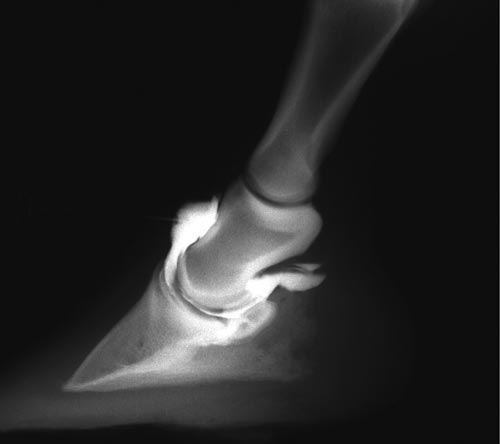Because the dorsal pouch of the DIP joint extends proximally for several centimeters, the joint is easily accessed using the dorsal parallel approach