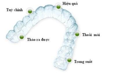 Niềng răng không mắc cài Clear Aligner và niềng răng Invisalign