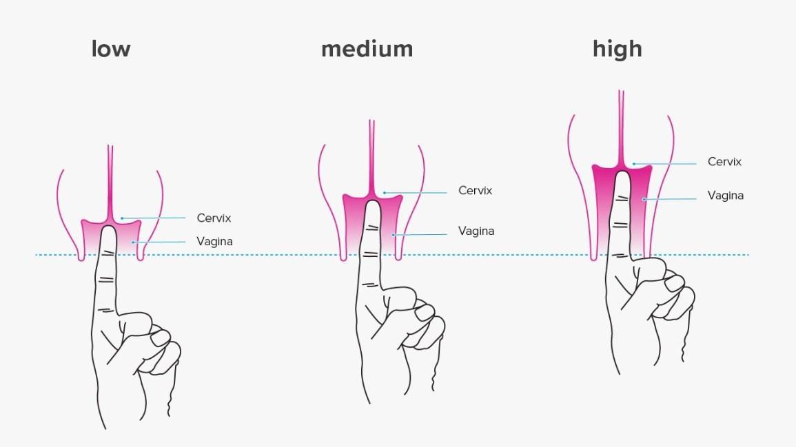 Cách xác định chiều dài âm đạo vào cổ tử cung thấp, trung bình, cao chỉ bằng cách sử dụng ngón tay trỏ để đo