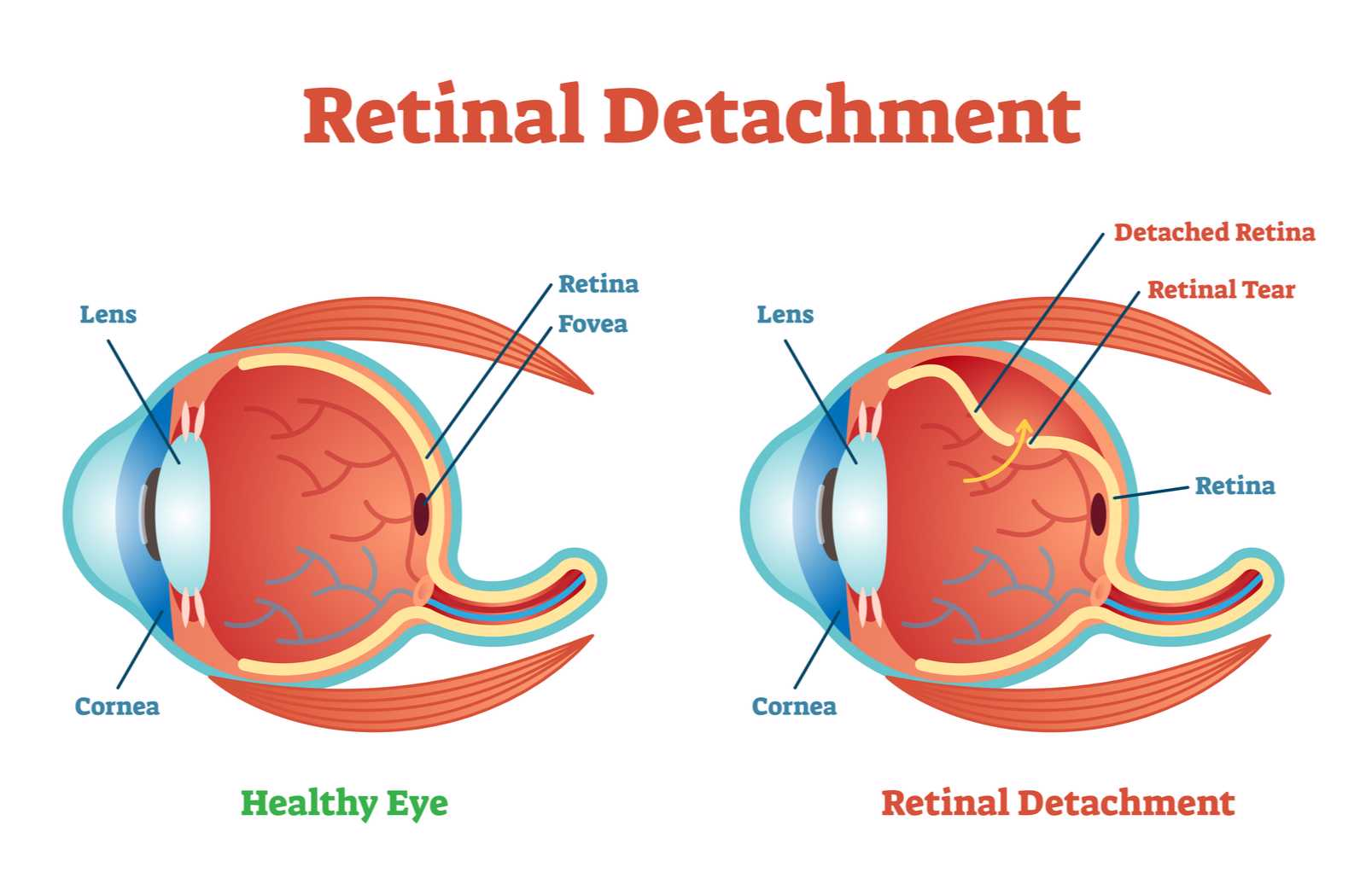illustration of retinal detachment showing layer breaking down