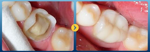 Trường hợp nào thì nên hàn trám răng cửa bị mẻ? 1