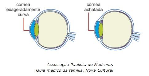 De acordo com o texto e com a óptica da visão, é correto afirmar que