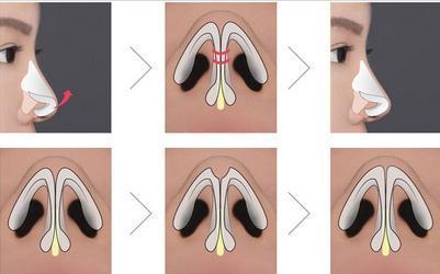 Thế nào là thu gọn đầu mũi? - Ảnh 2