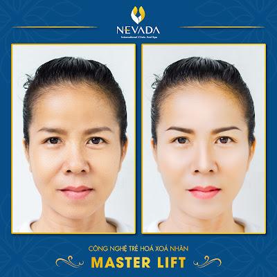 Công nghệ nâng cơ trẻ hóa da Master Lift