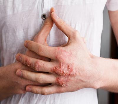 kulit gatal