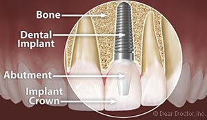 Dental Implants -New Haven Dental- Dr. Jenifer K. Moser