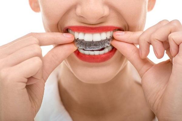 Niềng răng Invisalign có đau không - địa chỉ nào chất lượng?