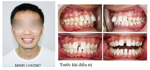 Bọc răng sứ cho răng thưa được rất nhiều người ưa chuộng