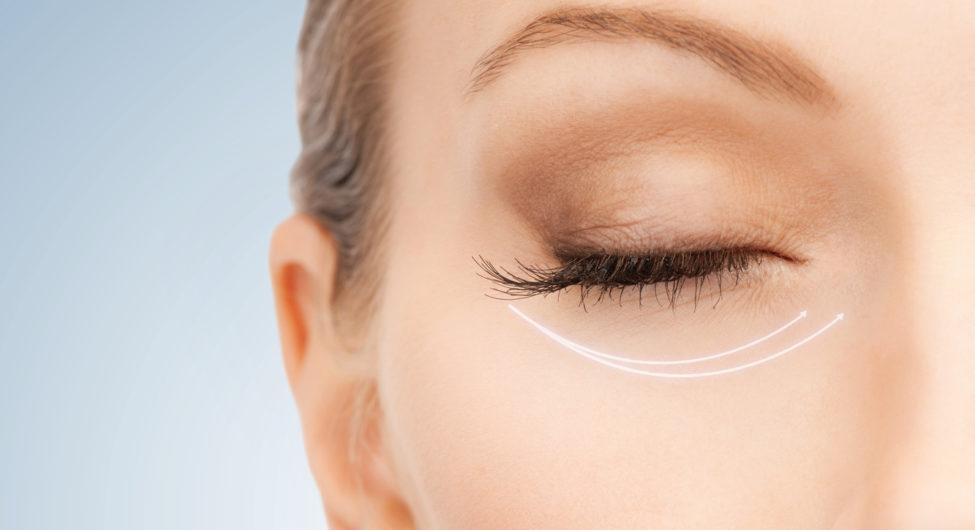 xóa nhăn vùng mắt