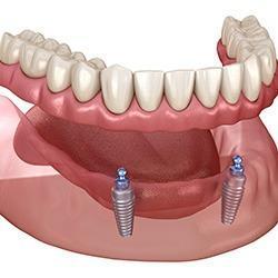 Dr. Marino & Associates Cheap Implants Near Me