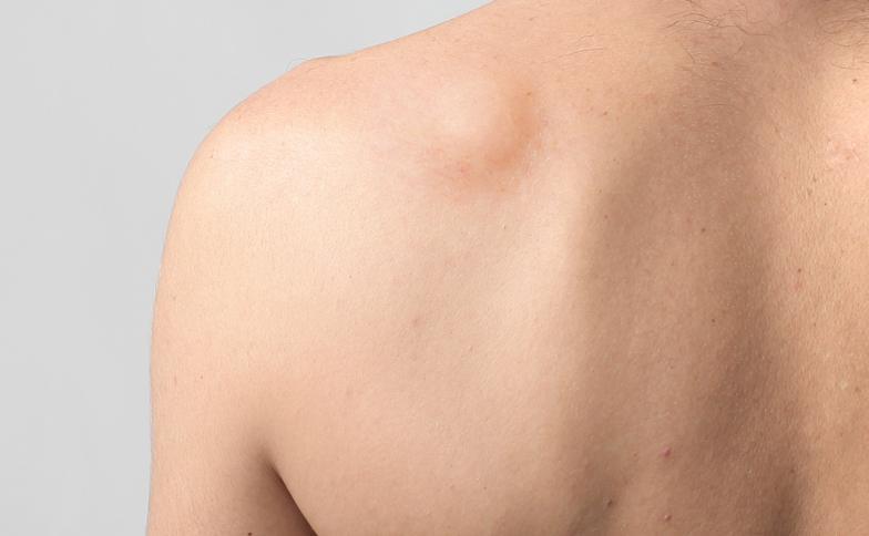 Hasil gambar untuk lipoma