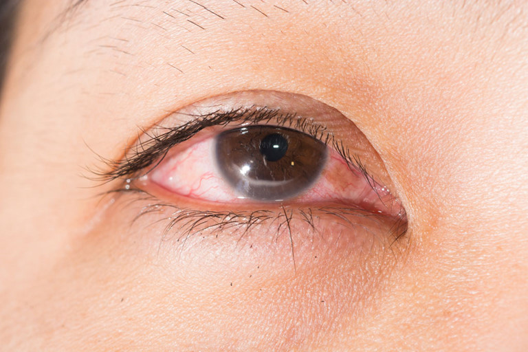 Hình ảnh mắt bịviêm giác mạc