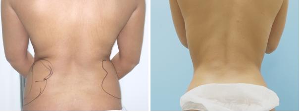 Resultado de imagen para lipolaser y liposuccion