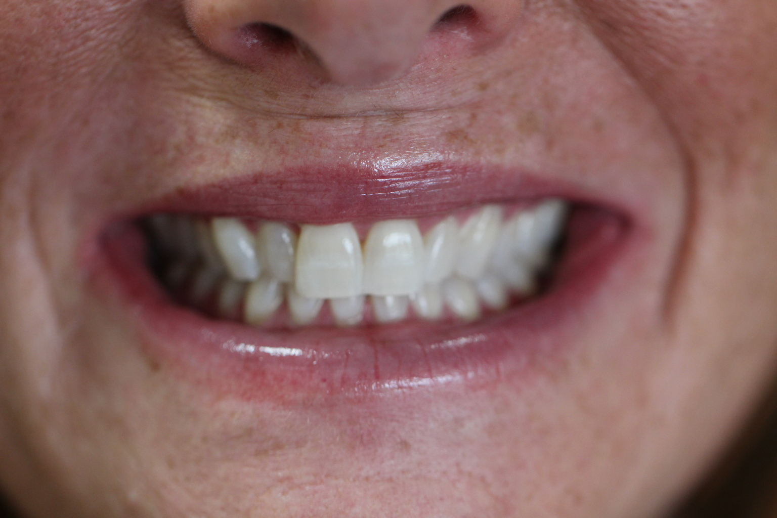 After Teeth Whitening at Ames Family Dental