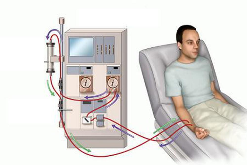 Hình ảnh bệnh nhân chạy thận