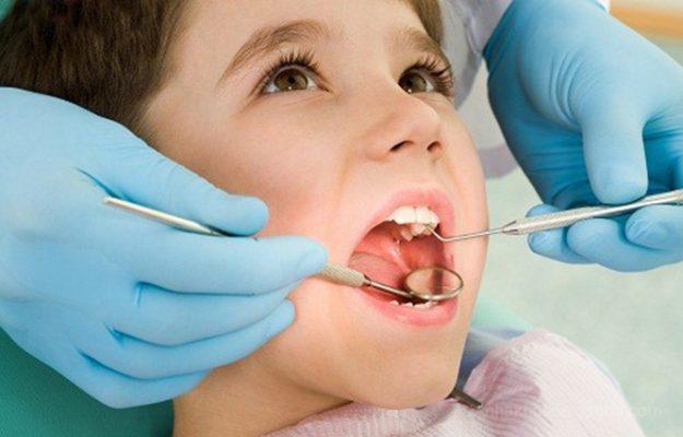 Có nên lấy cao răng cho trẻ như người lớn? - Nha khoa Bally