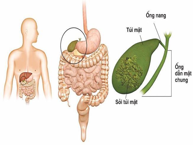 https://hongngochospital.vn/wp-content/uploads/2020/05/soi-tui-mat.jpg
