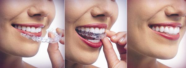Niềng răng Invisalign có đau không phụ thuộc vào tiêu chí nào?