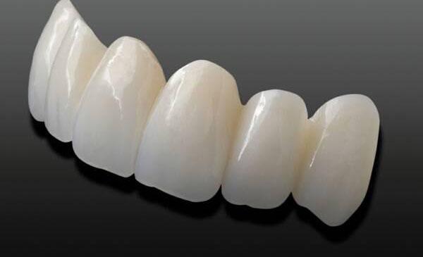 Giá răng toàn sứ bao nhiêu - Bảng chi phí update T8