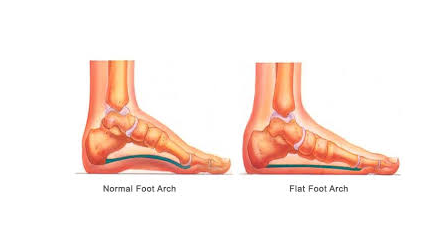 Pronation Distortion Syndrome: All You Need To Know 54 - Daily Medicos