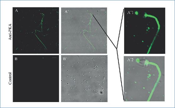 PKA is distributed throughout the spermatozoon including the mitochondria and acrosome areas. (A) Distribution of the PKA fluorescence (anti-PKA; 1:100) in the SUS.