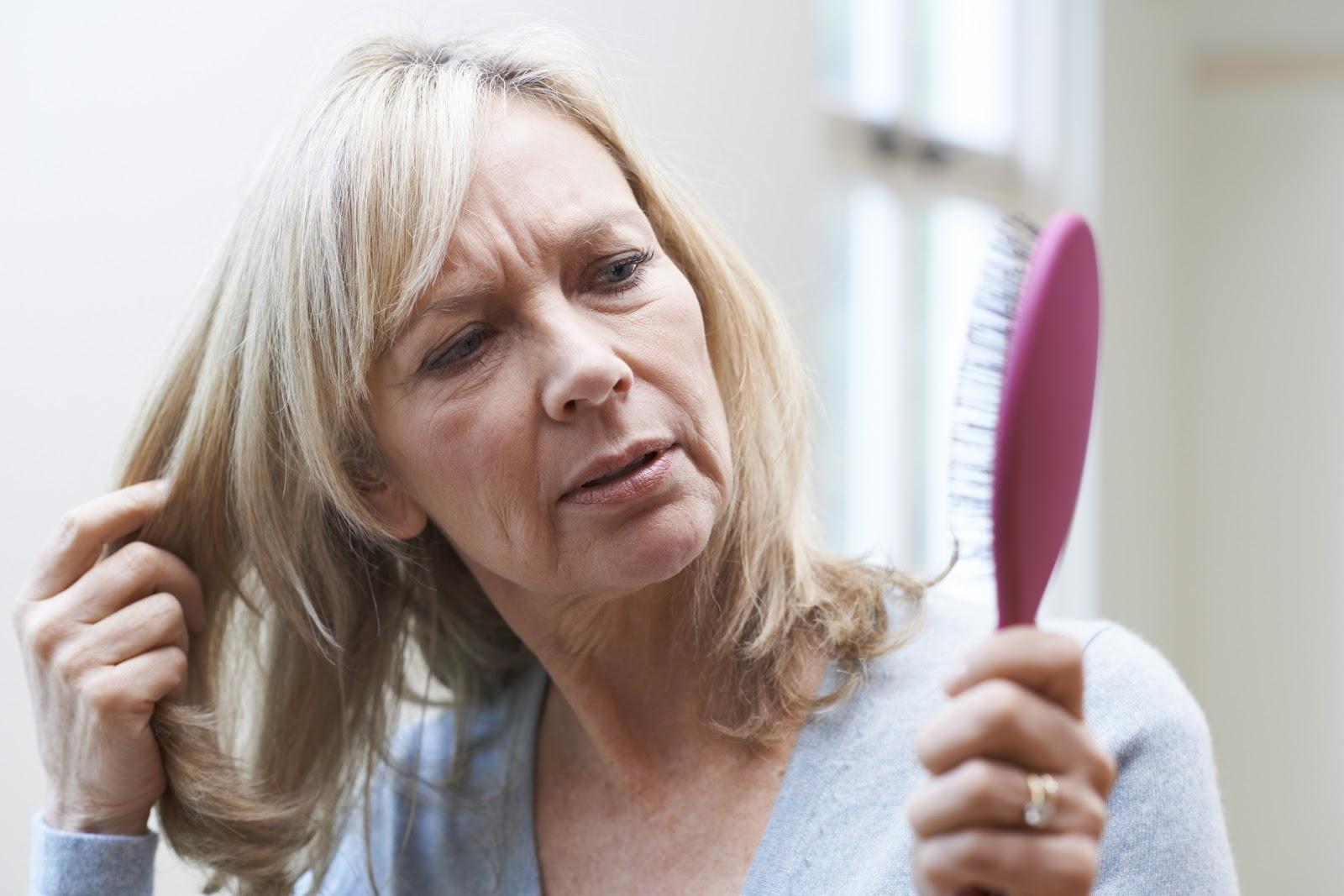 calvicie femenina durante la menopausia por DHI Costa Rica Soluciones