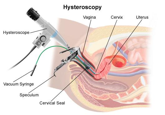Is hysteroscopy a major surgery?