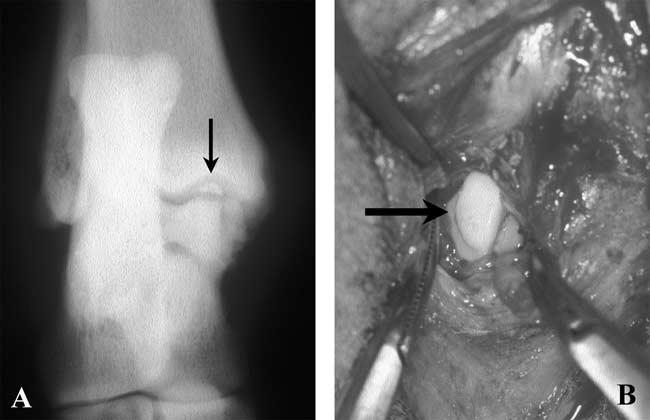 Radiographic and intra-operative images illustrating OCD of the trochlear ridge of the talus
