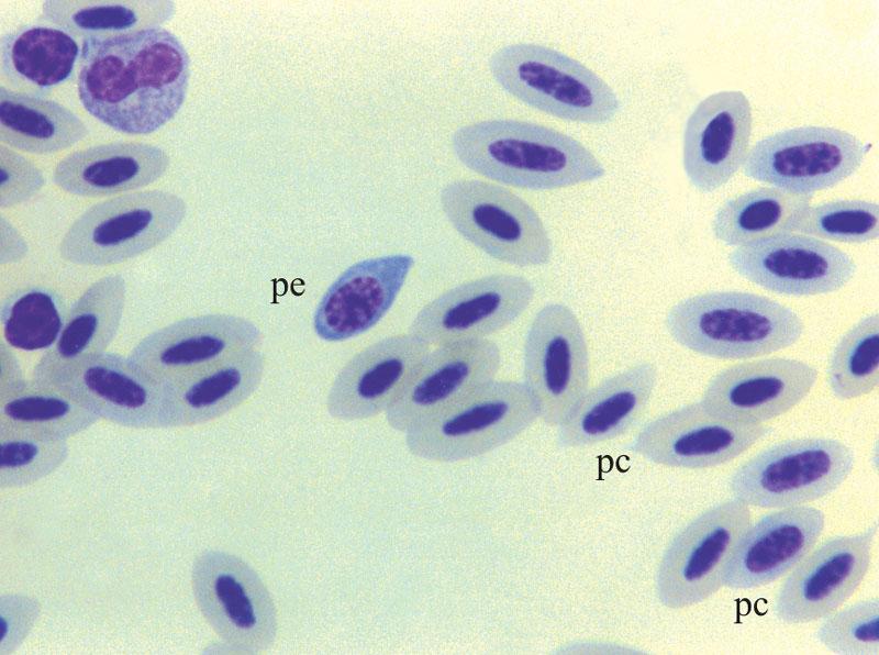 Shown is a polychromatic erythroblast (pe) and poikilocytes (pc)