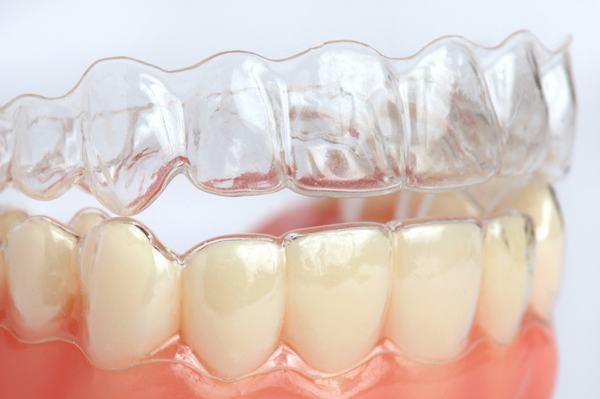 Niềng răng không mắc cài Clear Aligner khi nào nên sử dụng?