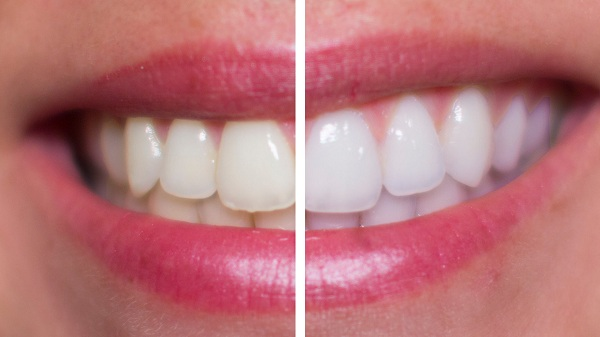 Cách làm trắng răng bằng muối tại nhà có hiệu quả thế nào 1